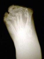 arthritis_foot_xray