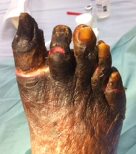 gangrene of the toes
