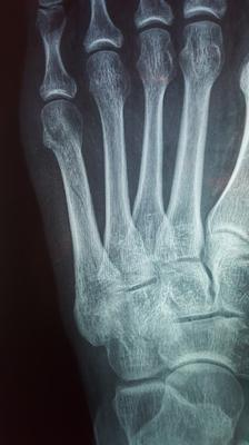 no healing six weeks post fifth metatarsal fracture