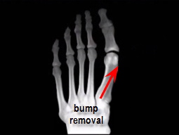 remodeling of great toe joint