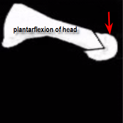 metatarsal head repositioned