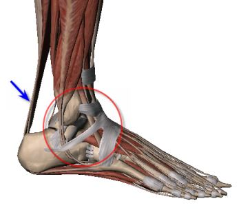 Achilles and ankle pain