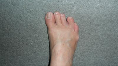 middle toe leans to the left