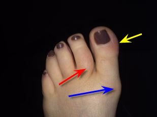 ingrown nail or gout?