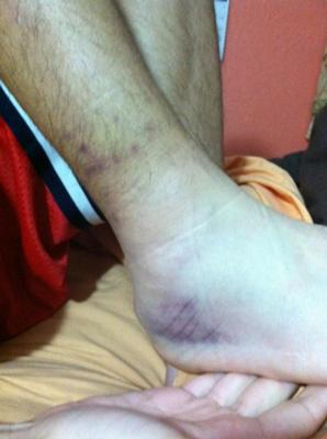 Freshly injured inversion sprain