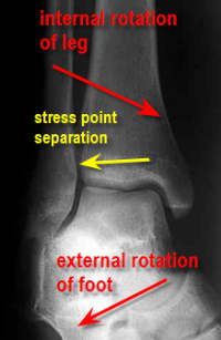 high_ankle_sprain