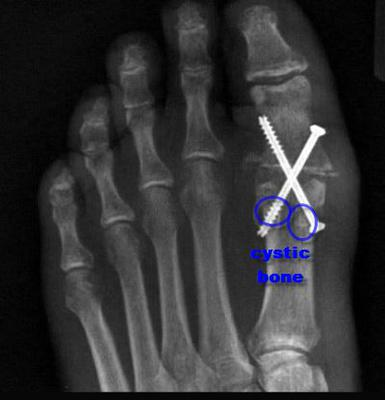great toe joint fusion with possible cystic lesions