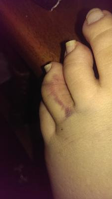 day 3 broken toe?