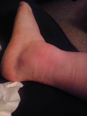 Broken or Sprained Ankle?