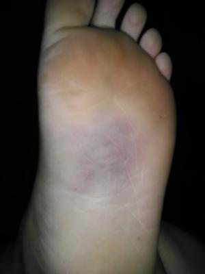 Broken Or Sprained Ankle