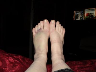 badly bruised foot secondary to trauma