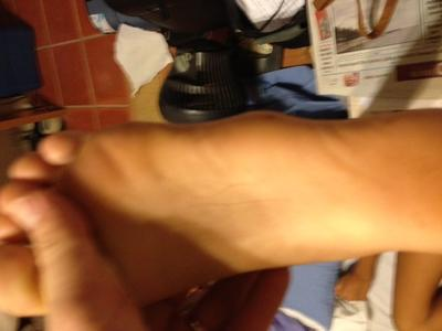 side of foot bumps