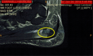 plantarfascial tear on mri