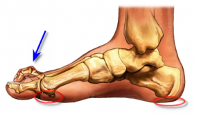 high_arch_foot