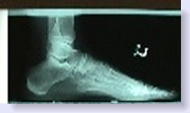 normal xray of foot