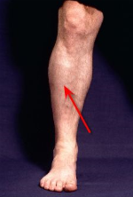 compartment_syndrome