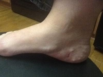 Continued Pain And Nerve Issues After Surgery For Plantar