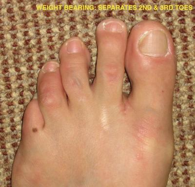 spreading of toes from Mortons neuroma