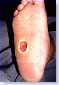 Houston podiatrist treats diabetic foot ulcers with Dermagraft