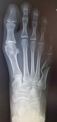 initial displaced fifth metatarsal fracture