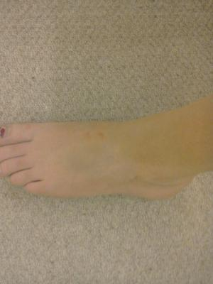 top of foot pain from trauma