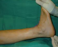 ankle equinus