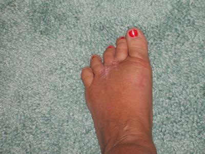 5 months post op for Mortons neuroma