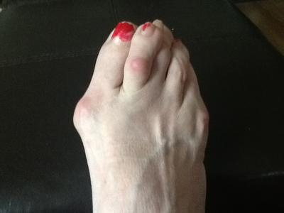 failed bunion surgery