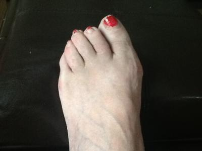 failed bunion and hammertoe surgery