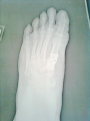 post operative bunion