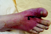 puncture wound in foot