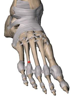 fourth metatarsal fracture