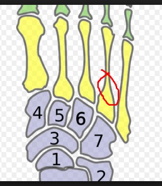 around here is where im injured according to first xray