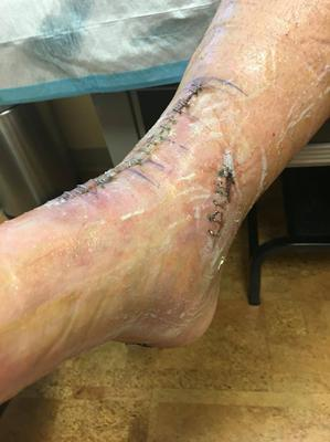this picture is one week after total ankle replacement