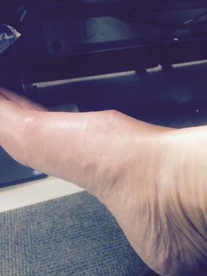 lump after ganglion cyst removal on foot