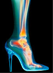 foot_xray_in_high_heels