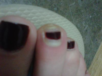 infected runners nails