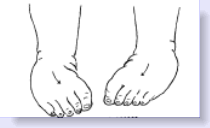 intoeing of feet