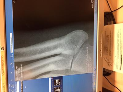 Possible stress fracture