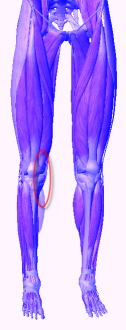 knee pain from high heels