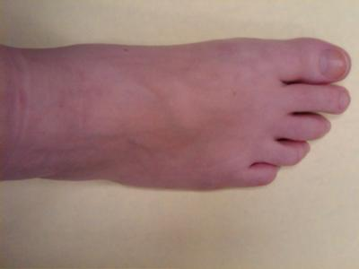 top of right foot