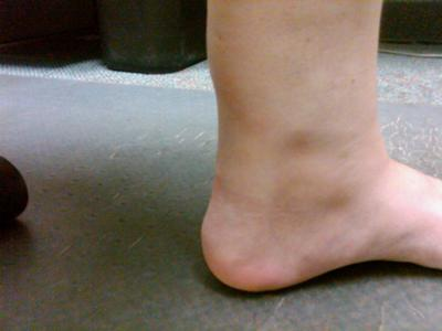 inner left ankle