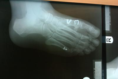 bunion osteotomy