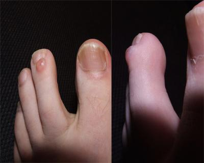Lump on my toe