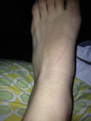 mid-shaft fracture (5th metatarsal) from 3 years ago acting up