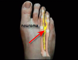 view of Morton's neuroma