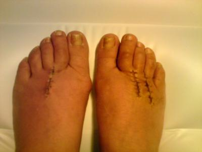 Morton's neuroma surgery