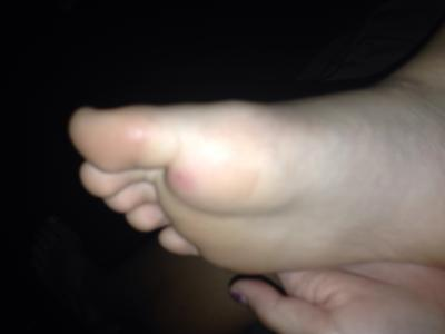 swelling in foot from foreign body