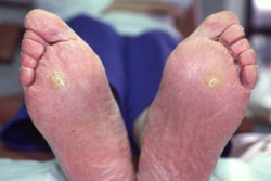 intractable plantar keratoma