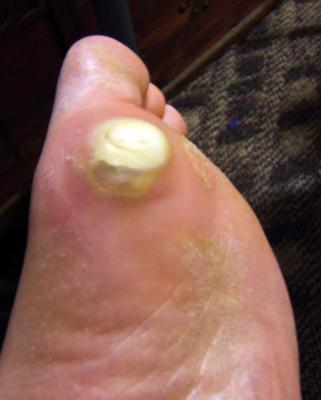 Painful callus on ball of foot from running